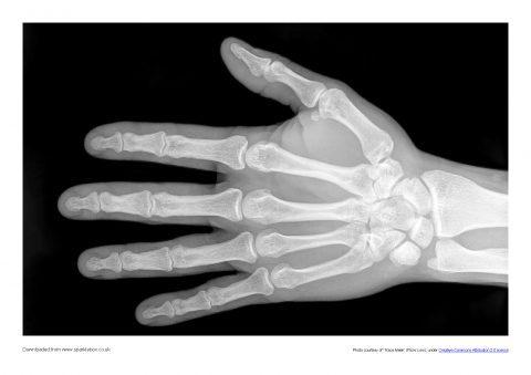 Terms Of Use >> X-Rays Photo Set (SB8272) - SparkleBox